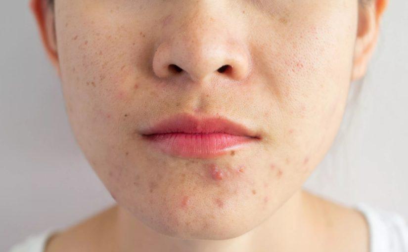 علت و درمان و جلوگیری از جوش های پوست در نقاط مختلف بدن