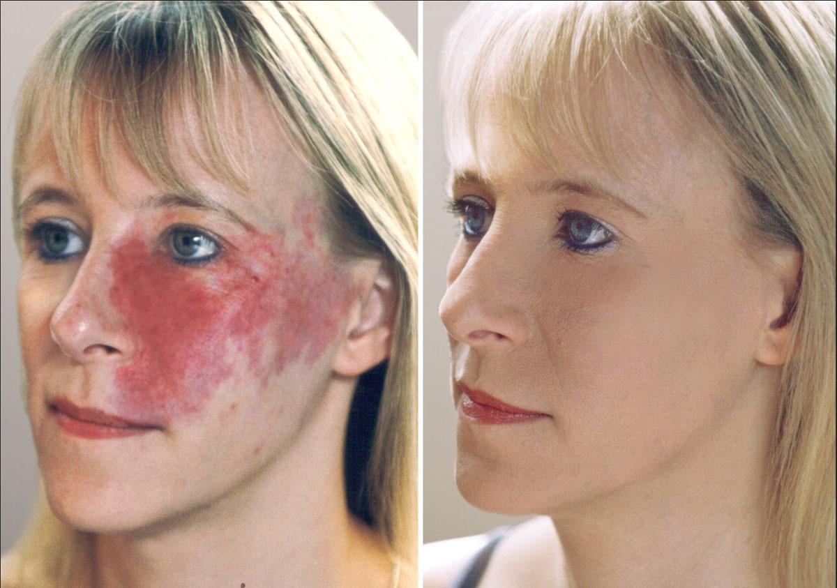 کامفولاژ پوست ، کامفولاژ زیر چشم