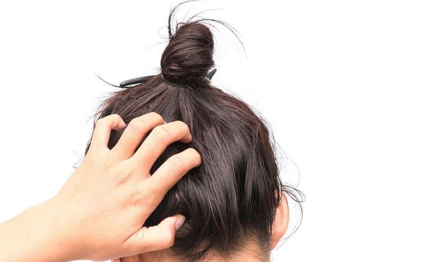 برای درمان خارش سر بعد از شستن ، چیکار باید کرد؟