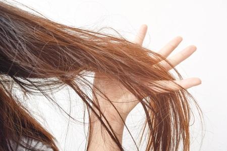 نازک شدن موی سر ، ریزش موی سر ، آسیب موی سر